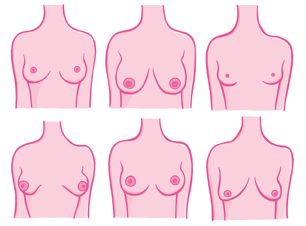 Breast-Shape-Size-Illustration-1.png