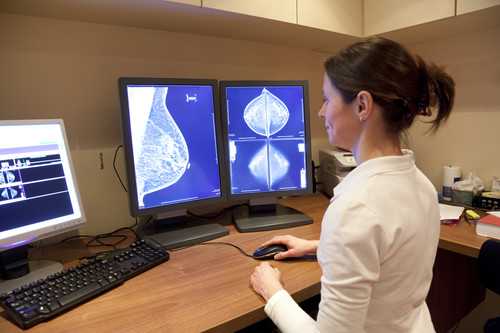 What about breast density?