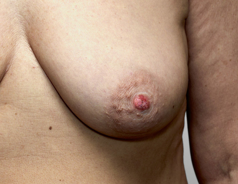 Crusty nipple